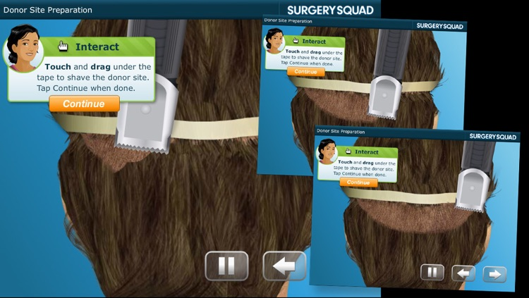 Hair Transplant - Surgery Squad screenshot-1