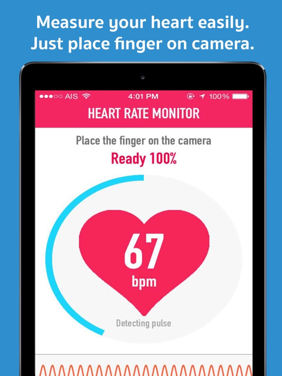 My Heart Rate Monitor & Pulse Rate - Activity Log for Cardiograph