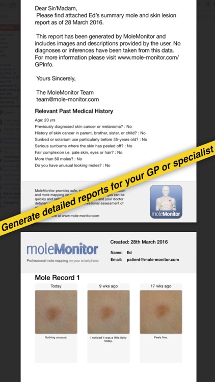 moleMonitor - Skin Cancer Mole Checker screenshot-4