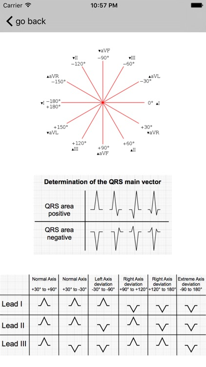 Learn ECG screenshot-4