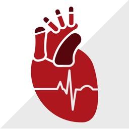 ECG Clínico: Guia de eletrocardiograma