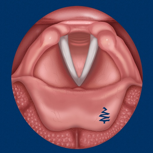 Vocal Folds ID