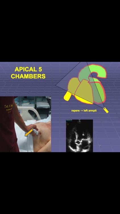 Ultrasound ABC...