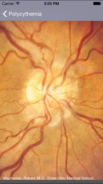 Atlas of Ophthalmology by Onjoph screenshot-3