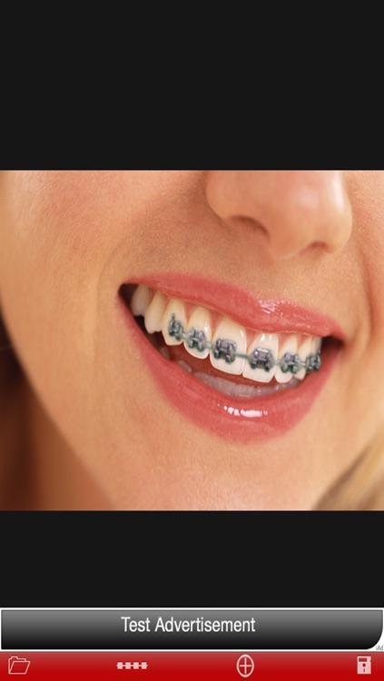 Orthodontic تقويم الاسنان screenshot-3