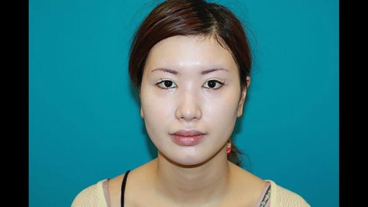 Nasal tip refinement - conchal cartilage grafts