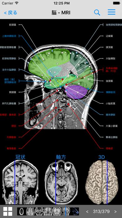 IMAIOS e-Anatomy ScreenShot1