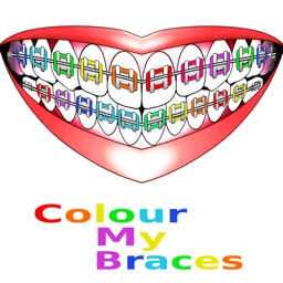 Colour My Braces