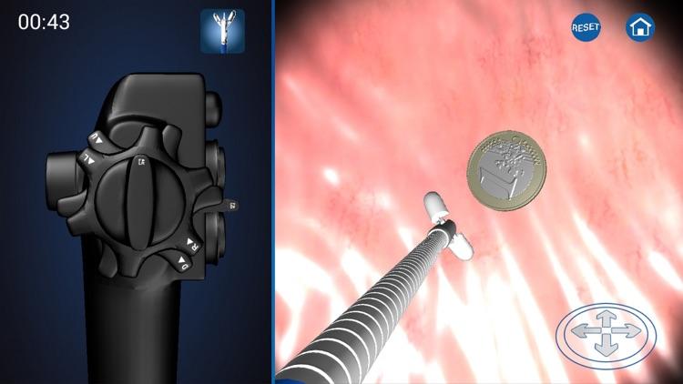 Endoscopy 3D