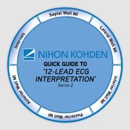 12-Lead ECG Interpretation - Quick Guide