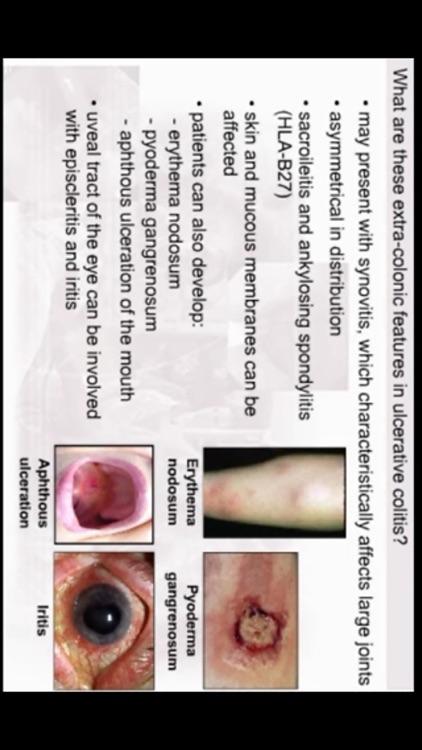AnswersIn Ulcerative Colitis