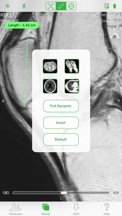 OsiriX HD screenshot1