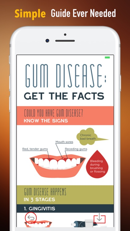 Gum Diseases Cure Guide-Naturally Heal and Prevent