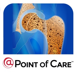 Osteoporosis @Point of Care™