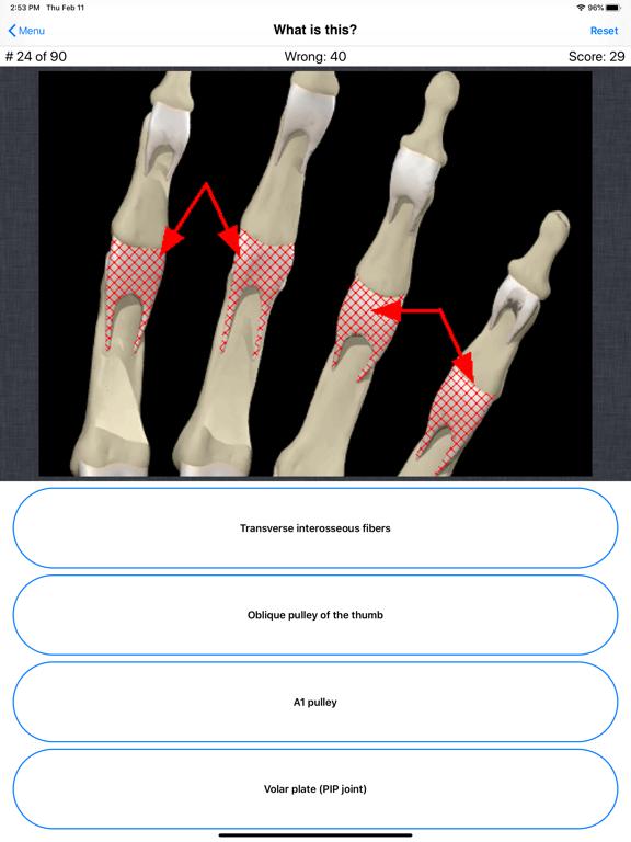 Anatomy Hand Quizのおすすめ画像6
