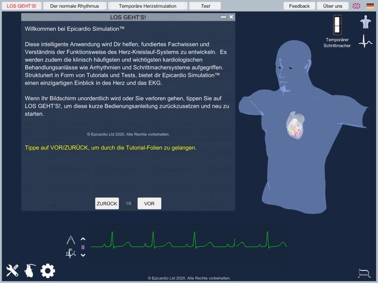 Temporary Cardiac Pacing screenshot-9