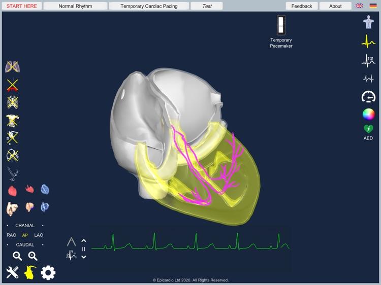 Temporary Cardiac Pacing screenshot-7