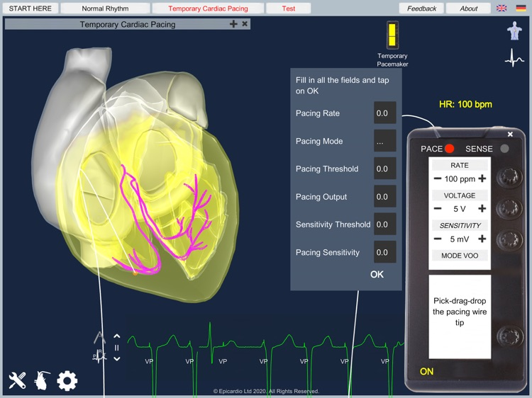 Temporary Cardiac Pacing screenshot-3