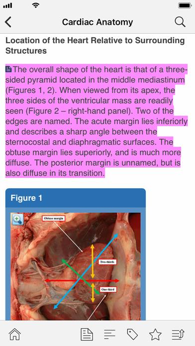 STS Cardiothoracic Surgery screenshot 8