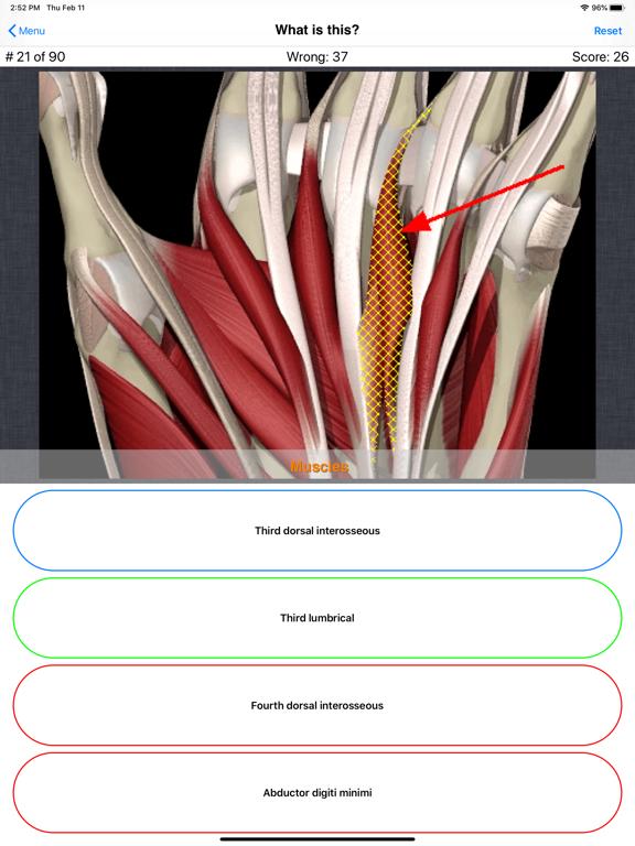 Anatomy Hand Quizのおすすめ画像7