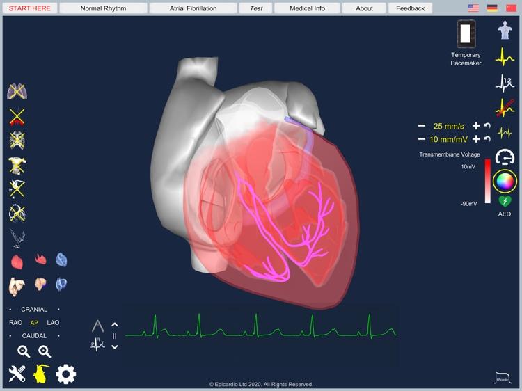 Atrial Fibrillation screenshot-7