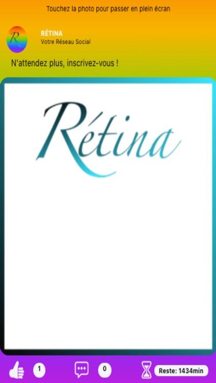 Rétina