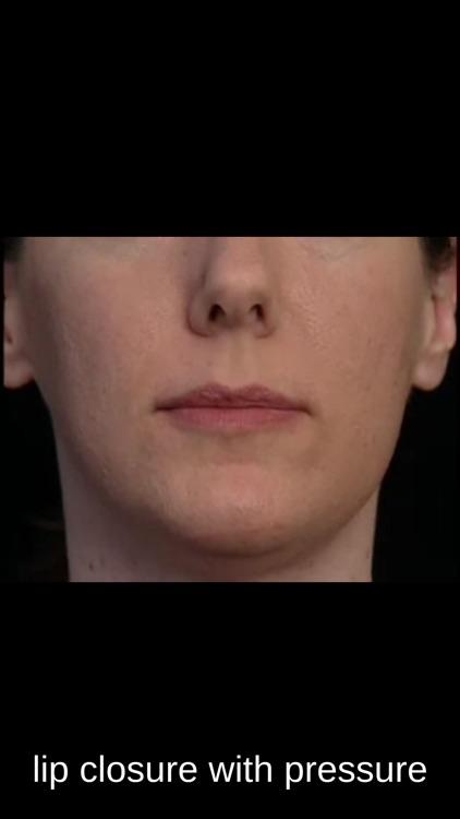 SmallTalk Oral Motor Exercises screenshot-3